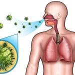 Lungenentzündung oder Bronchitis