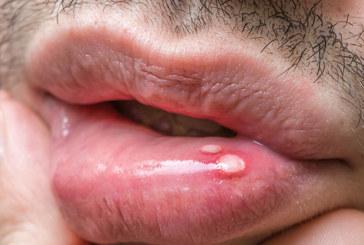 Blasen im Mund deuten auf Aphten hin