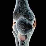 Der Kreuzbandriss – schmerzhafte Probleme mit dem Knie