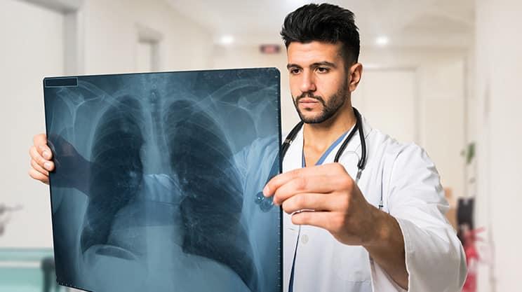 Welche Symptome einer Lungenembolie gibt es?