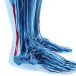 Achillessehnenriss – eine Verletzung, die unüberhörbar ist