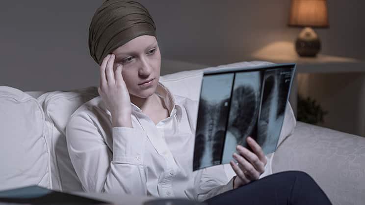 Immer mehr Frauen sterben in Deutschland an Lungenkrebs