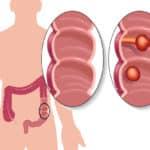 Polypen im Darm – harmlos oder gesundheitsschädlich?