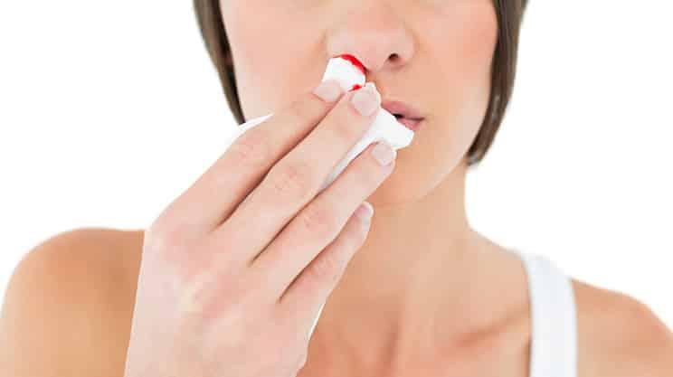 Wenn es aus der Nase blutet: Erste Hilfe gegen Nasenbluten