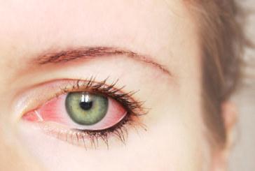 Augengrippe auf dem Vormarsch – was tun?