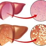 Fettleber – die häufigste Lebererkrankung in Deutschland