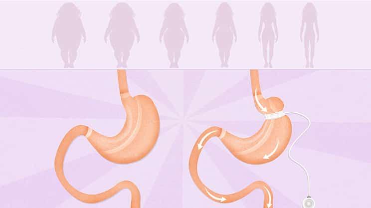 Wie effektiv hilft ein Magenband bei der Gewichtsreduzierung?