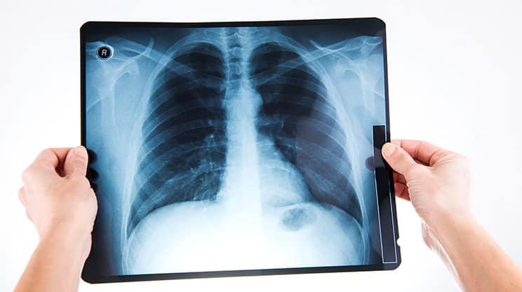 Wie gefährlich ist Wasser in der Lunge?