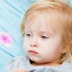 Die Masern sind wieder da – wie können Eltern die Krankheit erkennen?
