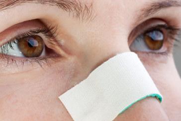 Nasenbeinbruch – die häufigste Gesichtsverletzung