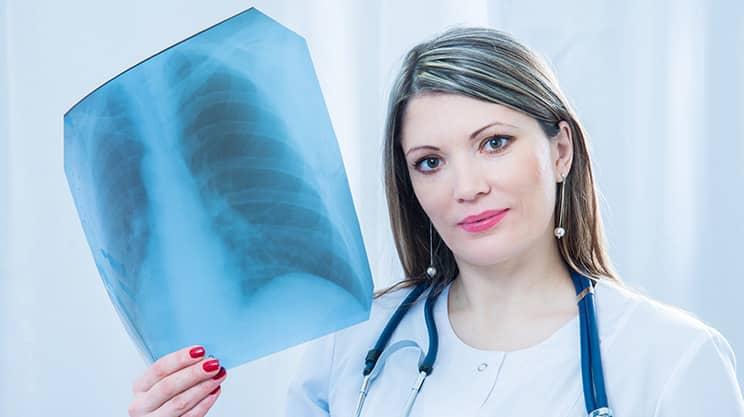 Tuberkulose – eine besiegte Krankheit ist wieder auf dem Vormarsch