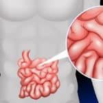Können Polypen im Darm Krebs auslösen?