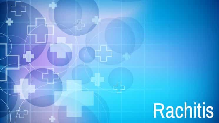 Rachitis – die Krankheit der armen Kinder