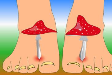 Was hilft wirklich gegen Nagelpilz?