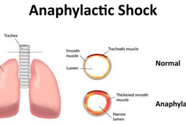 Der anaphylaktische Schock – die schwerste Form der Allergie