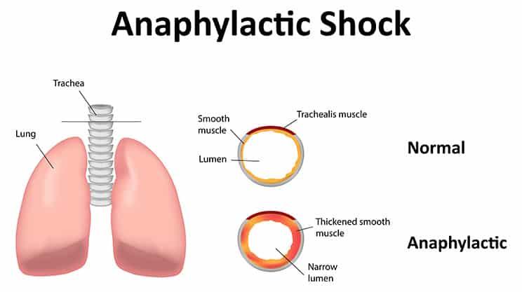 Gesundheits der anaphylaktische schock die for Allergie chlore piscine symptomes