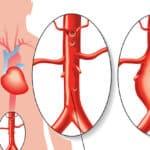 Bauchaortenaneurysma – viele leiden daran, ohne es zu wissen