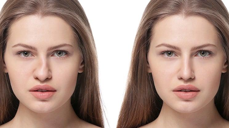 Sind Korrekturen der Nase auch ohne Skalpell möglich?