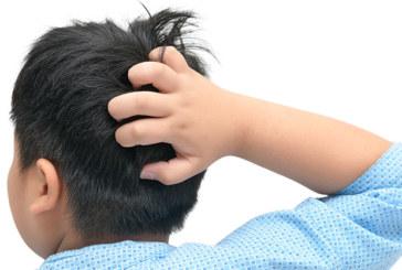 Juckende Kopfhaut: Läuse oder Schuppen?