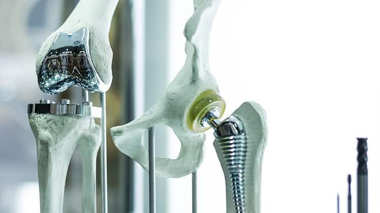 Künstliche Hüfte – eine Operation für mehr Beweglichkeit