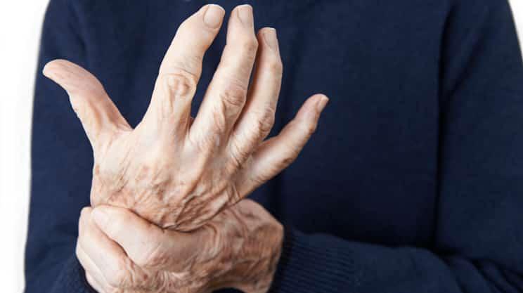 Arthrose – eine Krankheit, die Bewegung verlangt
