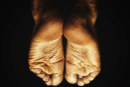 Schmerzen beim Auftreten durch Fersensporn