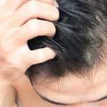 Erste Hilfe bei trockener Kopfhaut und Juckreiz
