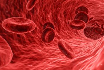 Krampfadern optimal behandeln lassen – Venenärzte und Methoden